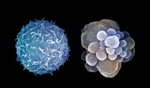 Apoptosis, cell death, of a white blood cell or leukocyte is shown on the right with a normal white blood cell on the left. Apoptis occurs when cells of the human myeloid cell line are deprived of growth factors. SEM X10,000 --- Image by © Dr. Gopal Murti/Visuals Unlimited/Corbis