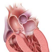 инфарктактанама