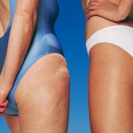 von was kommt cellulite