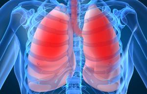 Клиническая картина эмфиземы легких