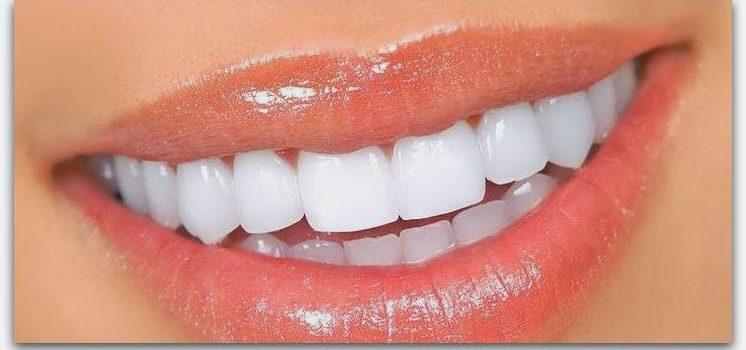 Домашнее отбеливание зубов народными средствами