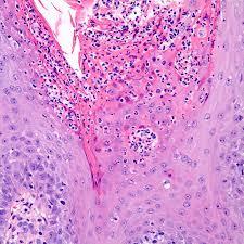 Сифилитический кератоз